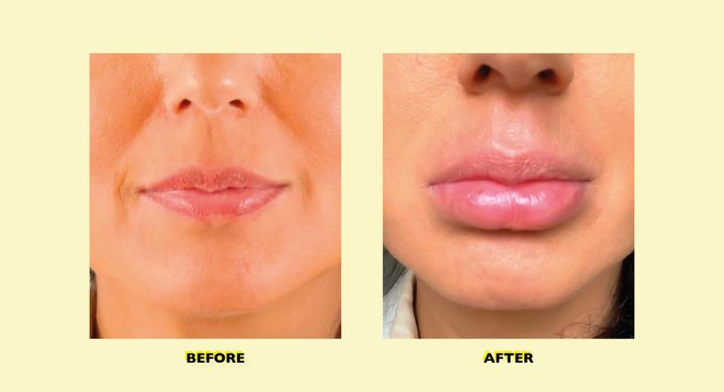 Tried & tested: Lip plumper for full lips without plastic surgery