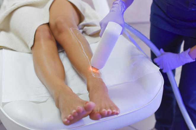 What you need to know before you start laser hair removal