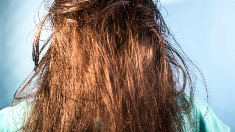 This panacea conceals your oily hair
